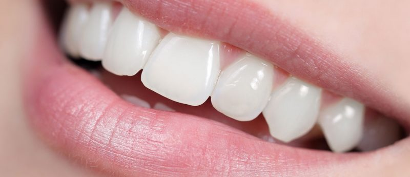 Weiße Zähne nach einem Bleaching