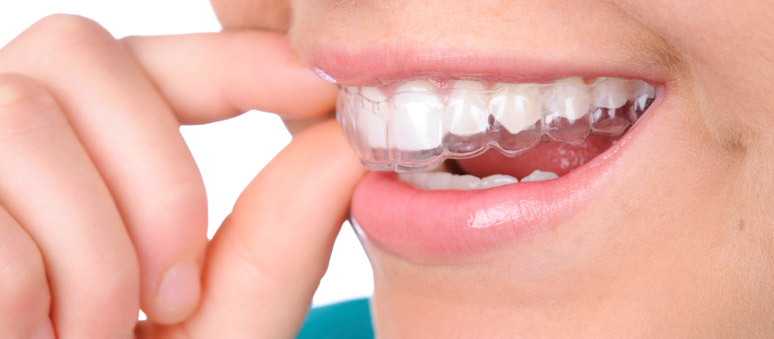 Invisalign Zahnschiene aus unserer Berliner Praxis