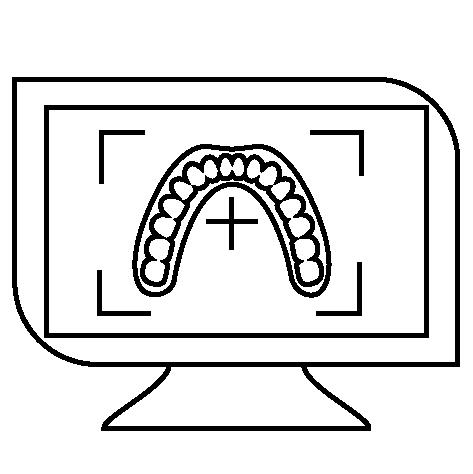 Icon Simulation vor Invisalign Therapie