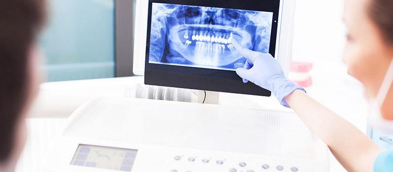Implantat Behandlung in Berlin Marzahn