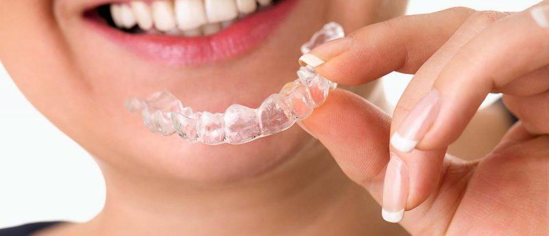 Inivisalign Zahnschiene in der Hand einer Patientin