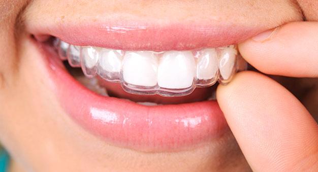 Foto einer unsichtbaren Invisalign Zahnschiene