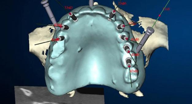 Navigierte Implantologie