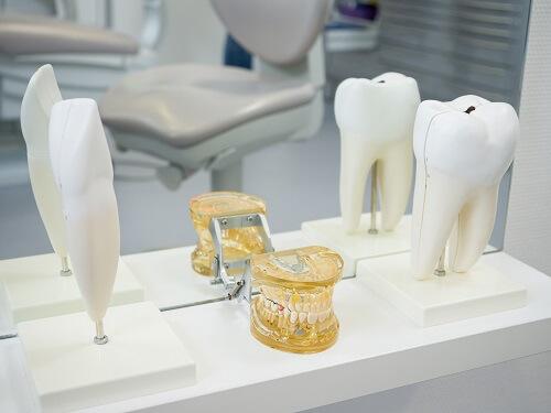 Schaubild Zahnersatz
