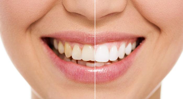 Vorher-Nachher-Vergleich Zahnaufhellung