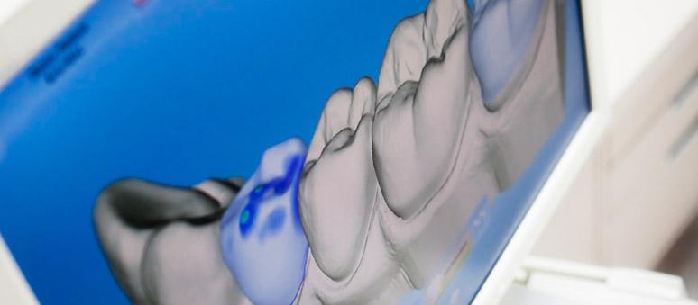 Digitales Röntgen bei Cendenta