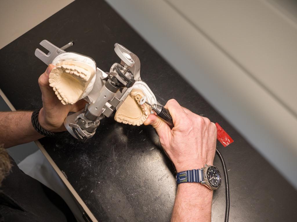 Zahntechniker bearbeitet Gebiss-Abdruck im Dentallabor